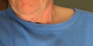 objawy stanu przedzawałowego